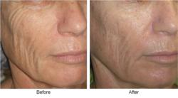 Skin tightening results after the use of Reaction